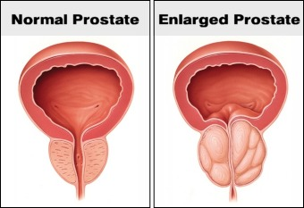 Enlarged Prostate Treatment Options
